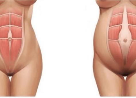 диастаз прямых мышц брюшного пресса