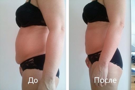 кавитация отзывы до и после фото